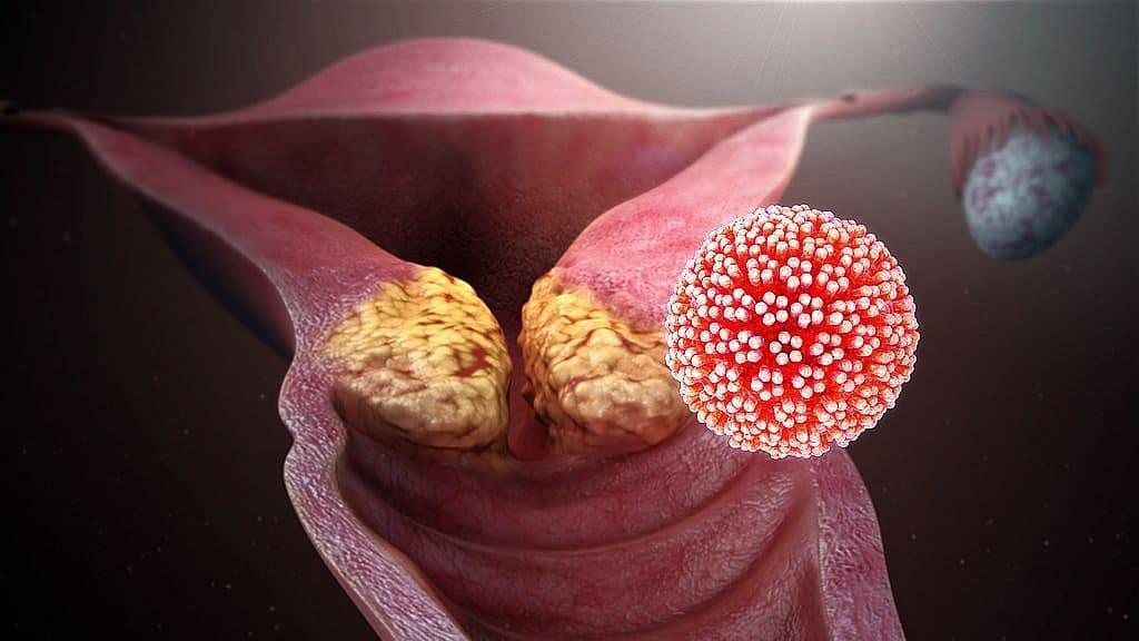 A papilloma vírus átterjed a gyermekekre
