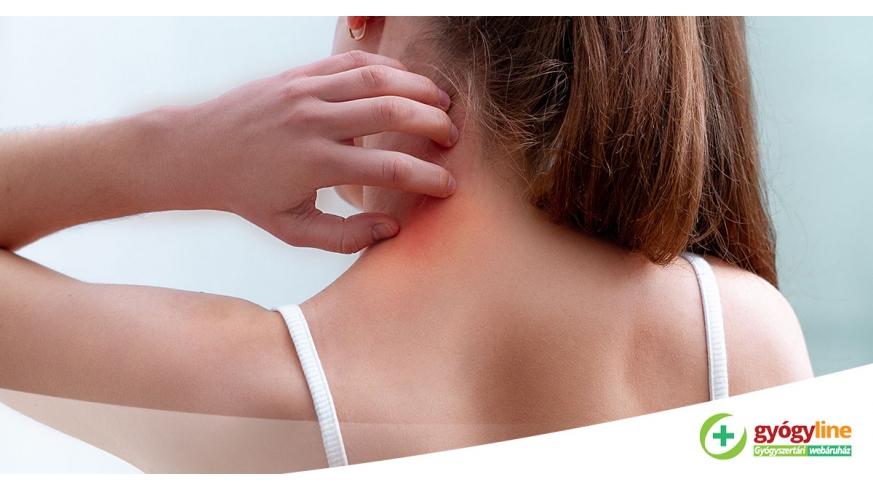 megbízható gyógymód a pikkelysömör ellen hogyan kezdjk el pikkelysömör kezelését